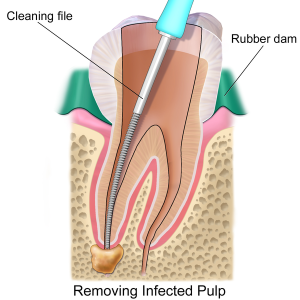 Root Canal Therapy in Maryville TN