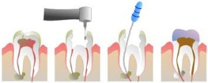 molar root canal therapy