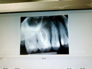 Root Canal Maryville TN